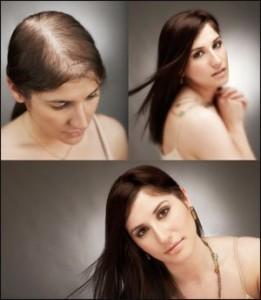 hairlossprotocol
